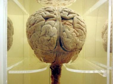 Wie eine Neurodatenbank aufgebaut wird