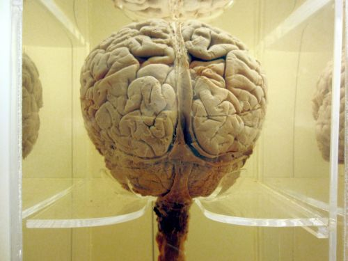 Gehirne in der Glasvitrine? (Bild: Yoel, morgueFile.com)